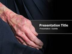 Skin Allergy PowerPoint Backgrounds