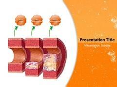 Atherosclerosis Symptoms