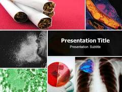 Tuberculosis PowerPoint Slides