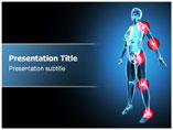Arthritis X Ray PowerPoint Slides