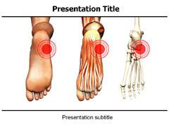 Orthopedic PowerPoint Slides