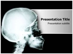 Osteogenesis Imperfecta PowerPoint Slides