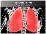 Pneumonia PowerPoint Slides