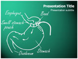 Gastric Band Template PowerPoint