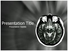 Brain MRI PowerPoint Slides