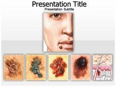 Skin Cancer Moles PowerPoint Slides