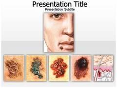 Skin Cancer Moles PowerPoint Slides
