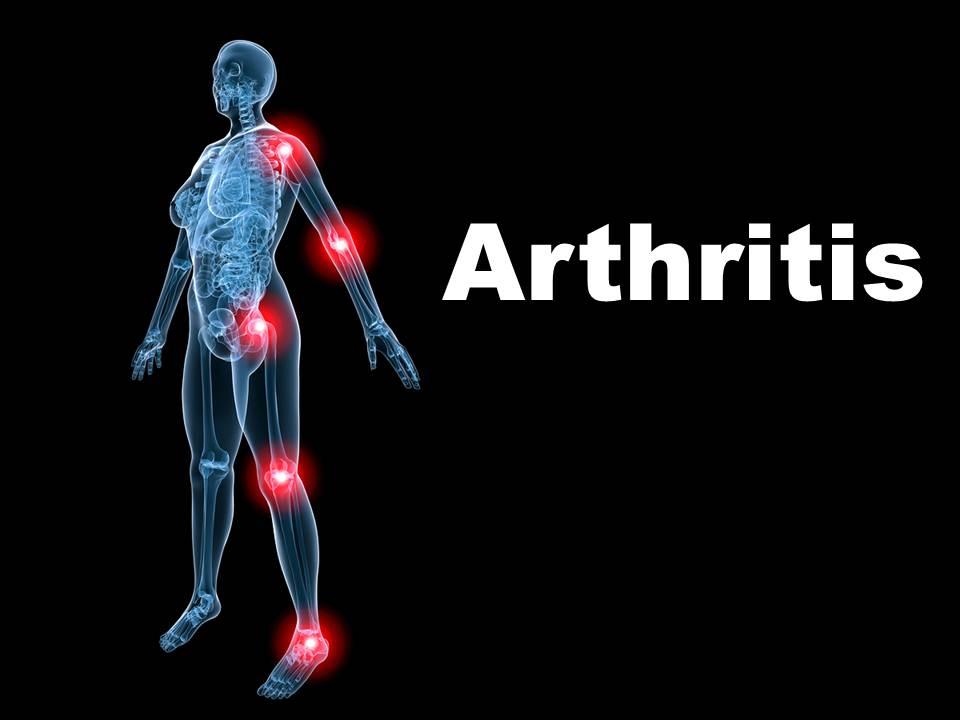 Arthritis PowerPoint Template