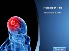 Tumor Marker PowerPoint Themes