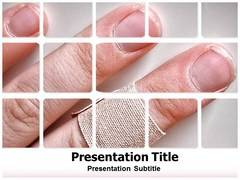 Wound Healing PowerPoint Slides