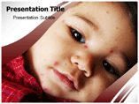 Chicken Pox PowerPoint Slide