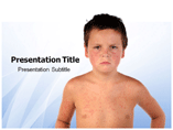 Measles PowerPoint Slides