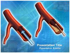 Atherosclerosis Causes PowerPoint Backgrounds