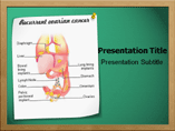 Ovarian Cancer PowerPoint Slides
