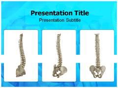 Spina PowerPoint Presentation