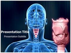 Hyperthyroidism PowerPoint Slides