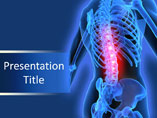 Back Pain PowerPoint Slide