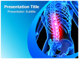 Spinal Tumor PowerPoint Slide
