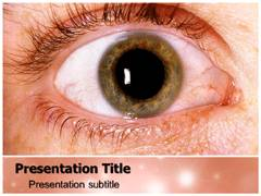 Glaucoma PowerPoint Slides