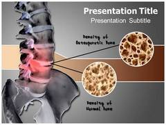Bone Density PowerPoint Backgrounds