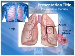 Emphysema PowerPoint Slides