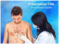 Chickenpox Template PowerPoint