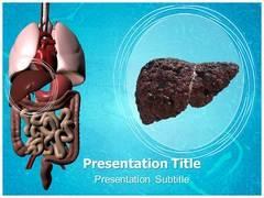 Liver Cirrhosis PowerPoint Slides