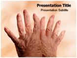 Osteoarthritis PowerPoint Slides
