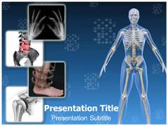 Orthopaedic Surgery PowerPoint Design