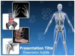 Orthopaedic Surgery PowerPoint Design