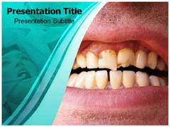 Dental Plaque PowerPoint Templates, Dental Plaque PowerPoint Backgrounds