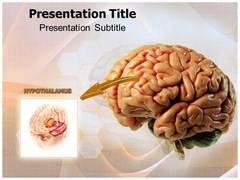 Hypothalamus Template PowerPoint