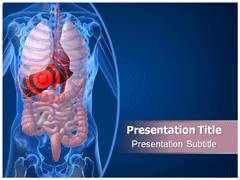 Digestive Issues PowerPoint Slides