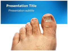 Fungal Disease PowerPoint Slides