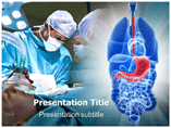 Gastric Surgery PowerPoint Slide