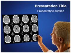 Neuroimaging PowerPoint Slides
