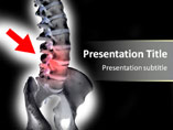 Human Spinal Slides For PowerPoint