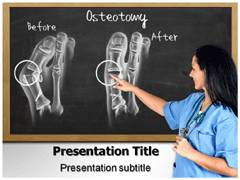 Osteotomy Toe Template PowerPoint
