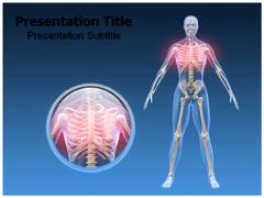 Chest Pain PowerPoint Templates, Chest pain PowerPoint slides