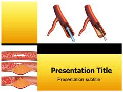Carotid Stenosis PowerPoint Backgrounds