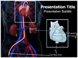 Catheterization PowerPoint Slides