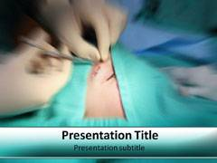 Major Surgery PowerPoint Slides
