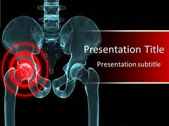 Arthritis Treatment PowerPoint Slides