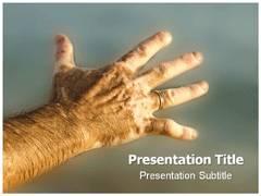 Vitiligo PowerPoint Slides