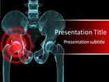 Arthritis Treatment Medical Powerpoint Template