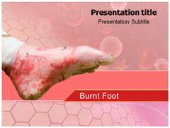 Burn Injuries PowerPoint Background