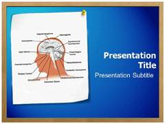 Glioma PowerPoint Slides