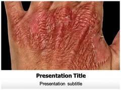 Burn Injury Treatment PowerPoint Slide