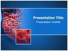 Appendicitis PowerPoint Slides