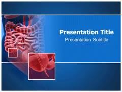 Appendicitis PowerPoint Slides